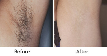 laser hair removal treatments working